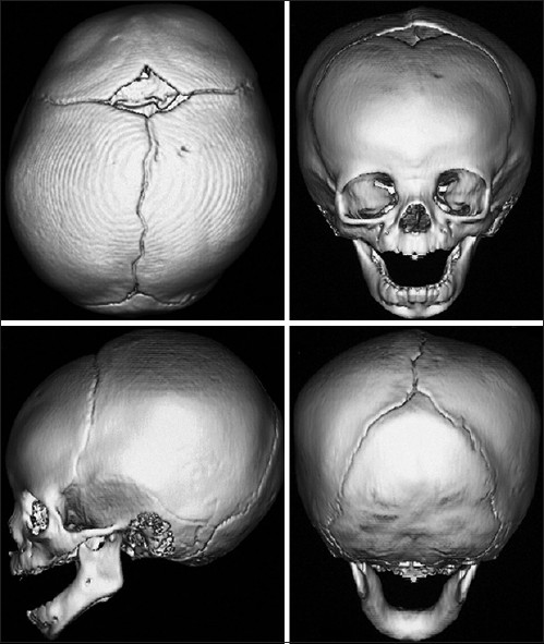Craniosynostosis, Ramesh Kumar Sharma. Figure 1: The sutures in a normal infant http://www.ijps.org/viewimage.asp?img=ijps_2013_46_1_18_113702_f1.jpg