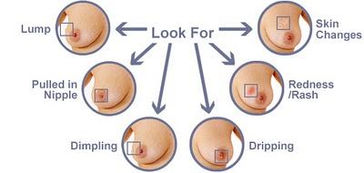 Breast examination diagram