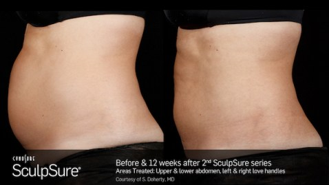 SculpSure_Before_After