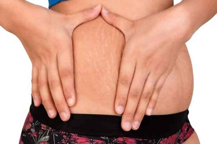 will stretch marks go away if i lose weight