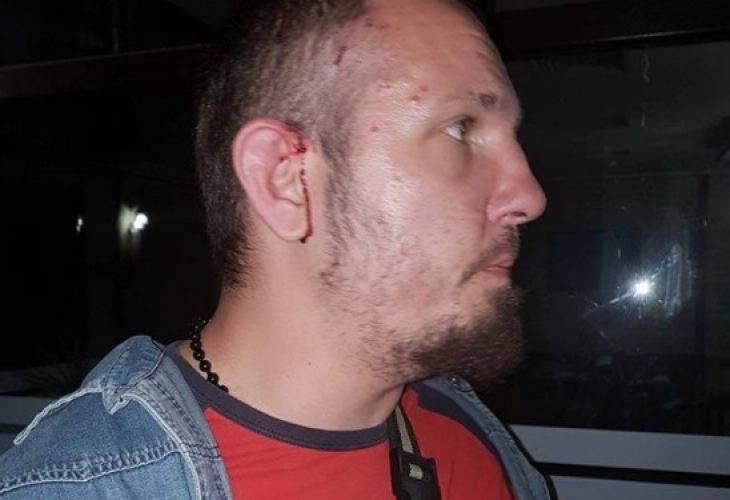 Рапърът Ицака МС е бил пребит от тумбата роми, предвождана от Кальо Тарзана