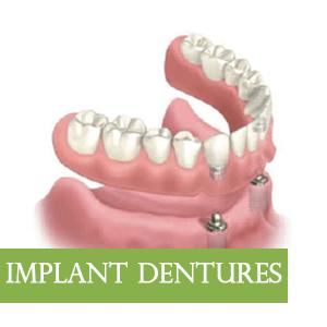 ImplantDenture-Graphic