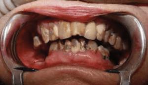 Immediate Dentures - Before