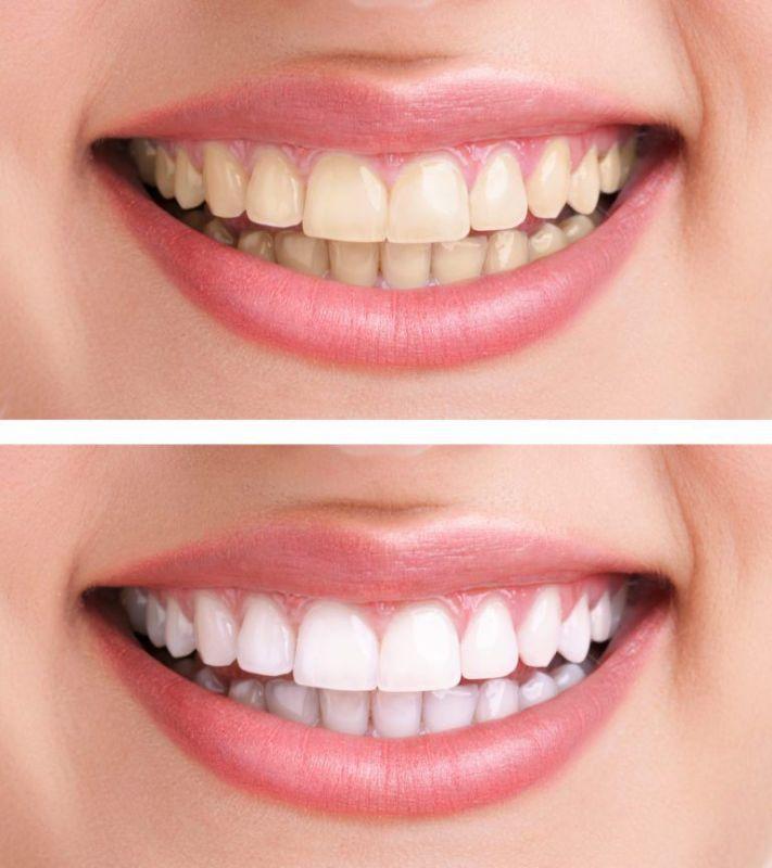 Teeth whitening at Vestavia Family Dentistry