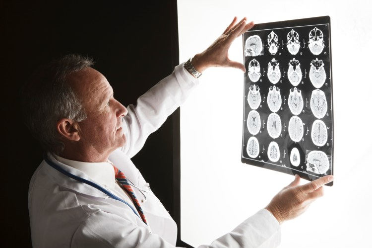Doctors in UAB's clinical trial had to prove that their drug was effective in removing amyloid protein from the brain. Photo courtesy of Alzheimer's Association of Alabama.