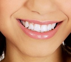 Teeth whitening in Karen Dental Clinic