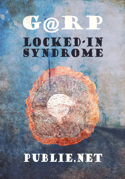 lockedinsyndrome
