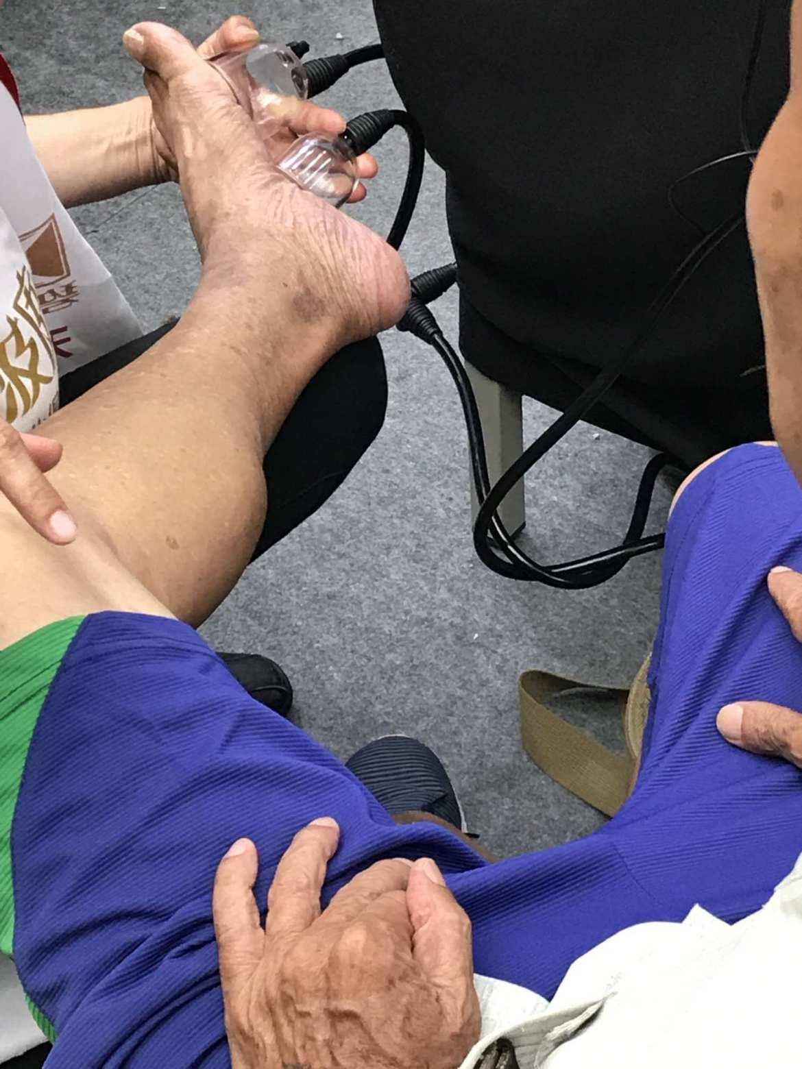 素食健康促進展體驗-腳部
