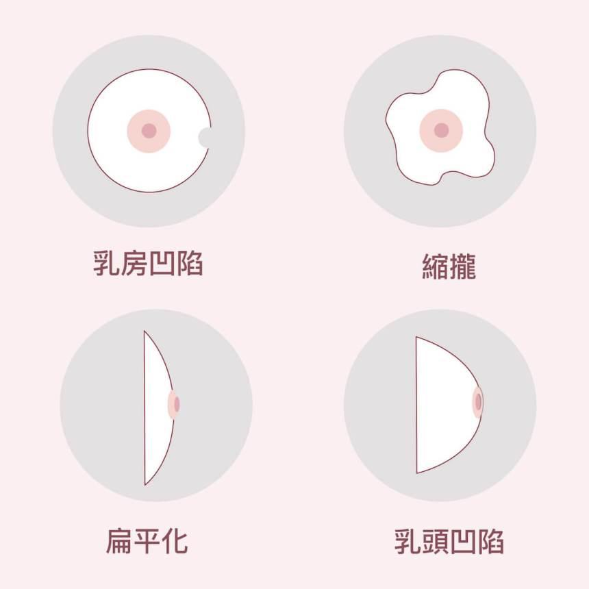 乳房症狀圖