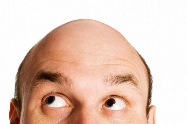 4820004_m-1-600x398 【ハゲ・薄毛】の進行を本格的に予防するための4つの方法