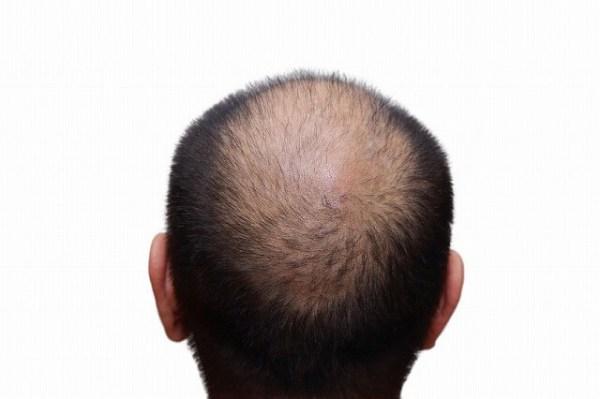 43890499_s-1-600x399 もう薄毛で悩みたくない!確実に髪の毛を生やす方法とは?