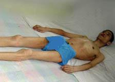 李業泉被勞教所殘害十個月後的身體狀況