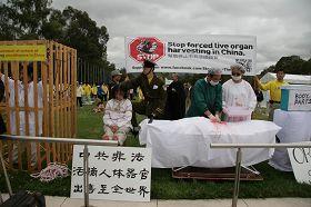 模擬演示,揭露中共酷刑迫害法輪功學員並活體摘取器官