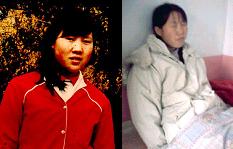 李景華被折磨致精神失常前後照片