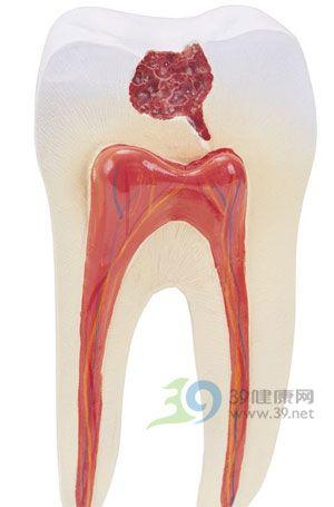 牙髓_英文_拼音_什么是牙髓_醫學百科