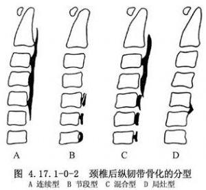 后路椎間孔切開術_英文_拼音_什么是后路椎間孔切開術_醫學百科