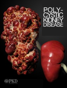 edited PolycysticKidneyDisease
