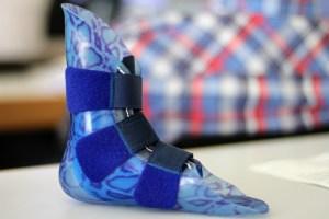 Besmet vermiculiet mogelijk oorzaak longkanker bij prothesemaker