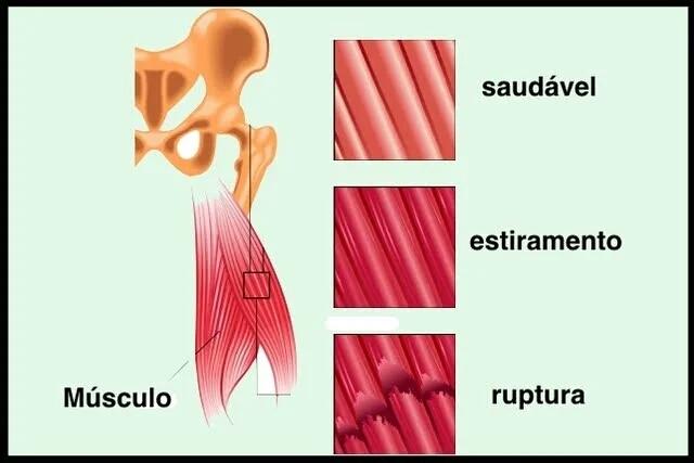 Sintomas da distensão muscular, você sabe como é (1).jpg