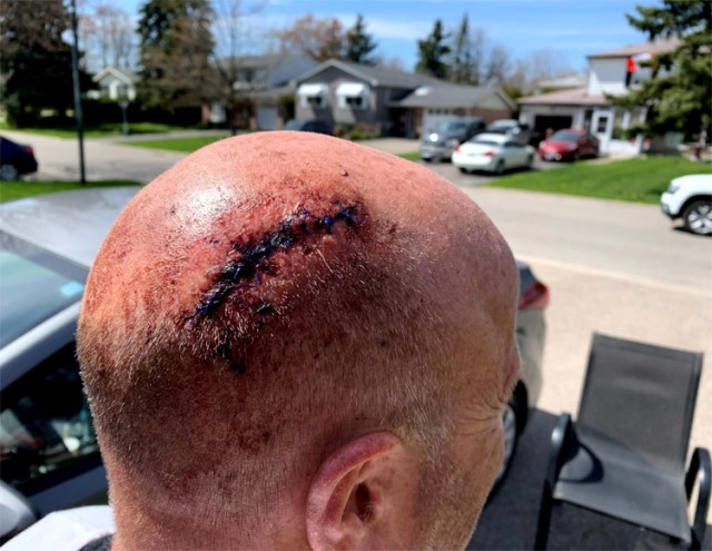 Cycling Chronicles head injury