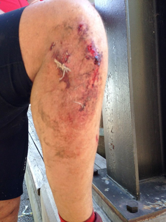 After the crash, the sticky blood on the knee collected grass and other crud that I didn't find until the end of the ride.