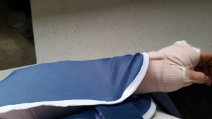 The temporary splint and sling I wore for the first week.