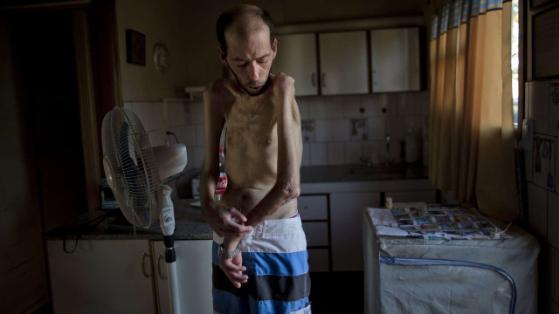 Krank durch Pestizide: Farmarbeiter Fabian Tomasi aus Basavilbaso