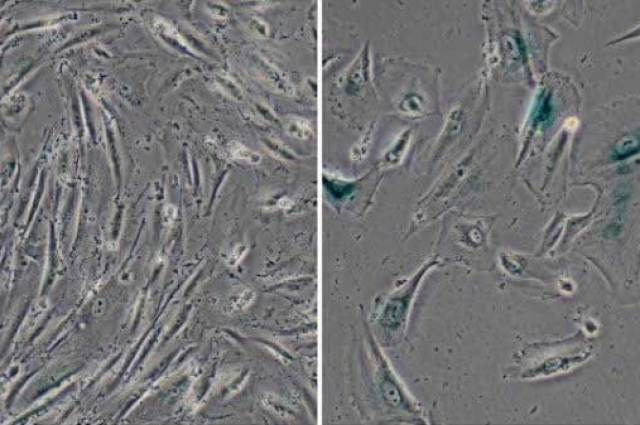 Görsel : Salk Institute , This image shows normal human cells (left) and genetically modified cells developed by the Salk scientists to simulate Werner syndrome (right), which showed signs of aging, including their larger size