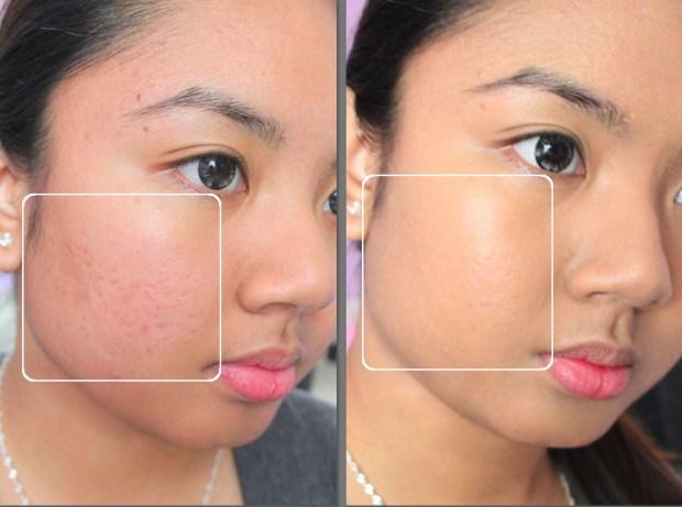 Acne Treatment Tips