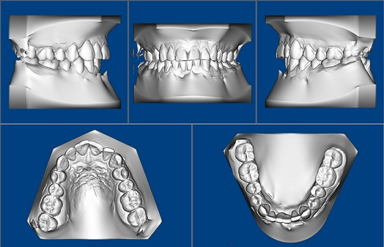 3D Digital Orthodontics