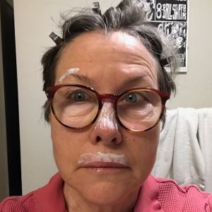 Writer Billie Best copes with actinic keratosis and the threat of skin cancer