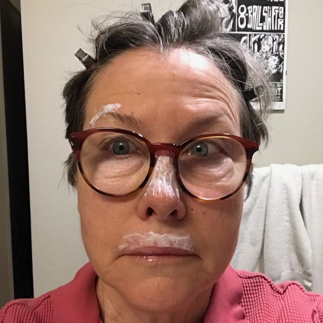 Writer Billie Best is being treated for skin cancer on her face