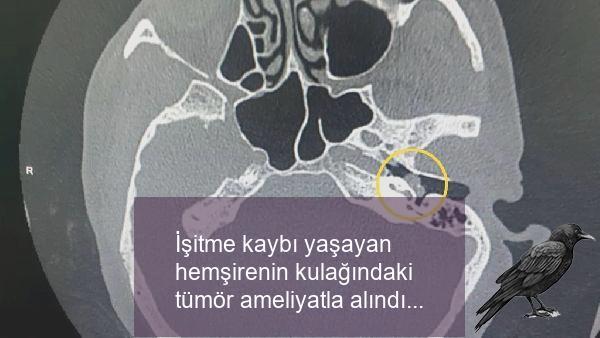 isitme kaybi yasayan hemsirenin kulagindaki tumor ameliyatla alindi 1 gwzagqek