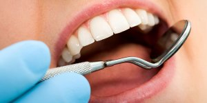 New York Dental blog whitening - New-York-Dental_blog-whitening