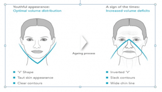 non-surgical face lift