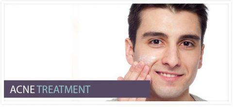 Acne/Acne Scars/Oily Skin