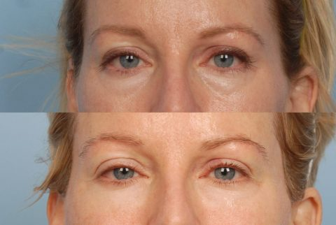Eye Area Rejuvenate