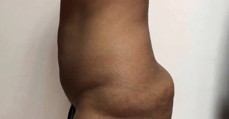 Before-Body Slimming