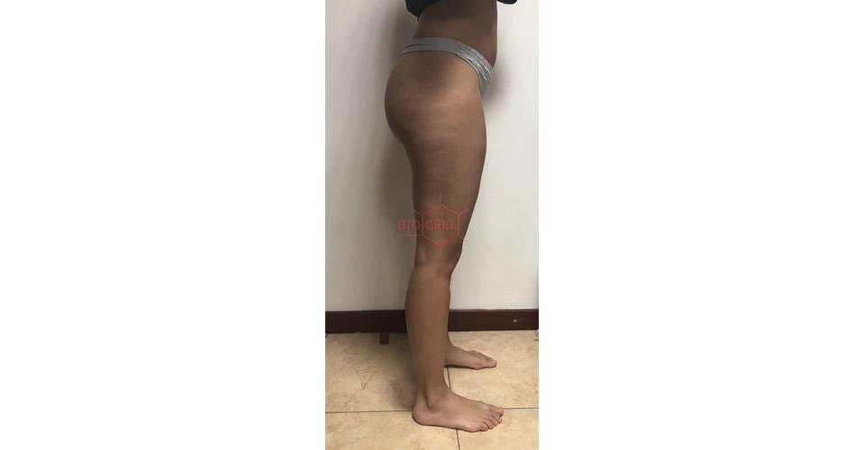 Before-Body Slimming
