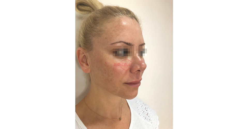 After-Cheekbones Recontouring