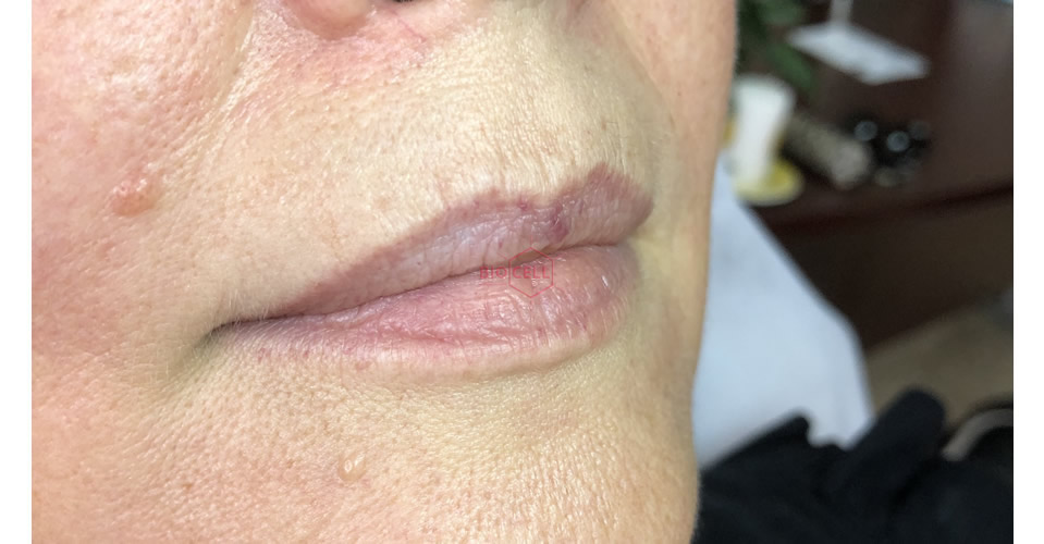 Before-Lips Augmentation
