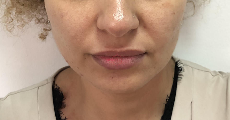 Before-Face Slimming
