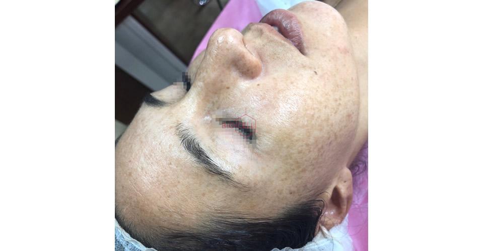 After-Skin Rejuvenation