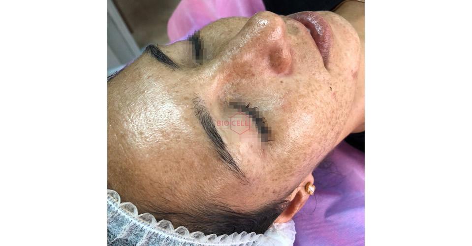 Before-Skin Rejuvenation
