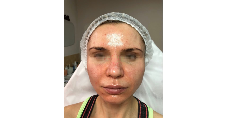 Before-Skin Rejuvenation