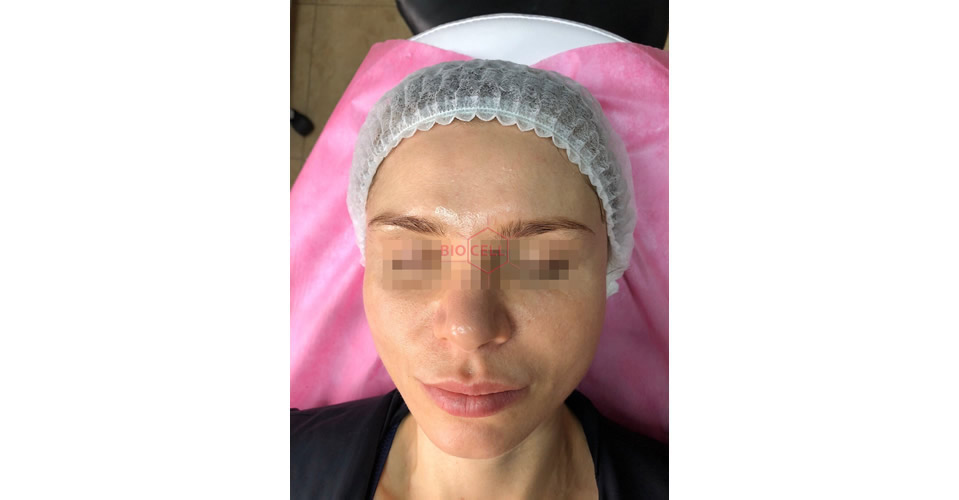 After-Skin Rejuvenation