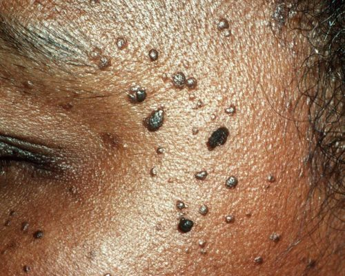 Skin Tag Removal procedure