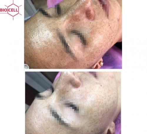 skin-biorevitalization