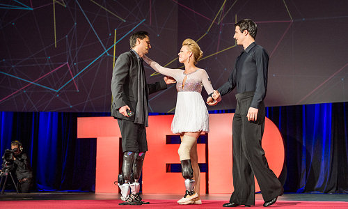 A first dance, on a next-generation bionic limb
