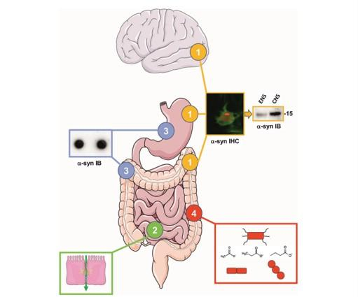 The involvement of the gut in Parkinson's disease: hype or